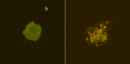 Fluorescence images of a 3D collagen culture of an esophageal carcinoma cell line a) untreated, b) after aminolevulinic acid-based PDT. The cultures were incubated with fluorescent dyes enabling visualisation of intracellular organels (Acridin Orange - green fluorescence (nuclear structures, cytoplasm), CellMask Orange - orange fluorescence (cell membrane).