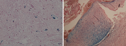 Human brain, globus pallidus. Blue dyed deposits of Fe(III) ions. Perls' reaction, Left: x 20. Right: glioma x 40.